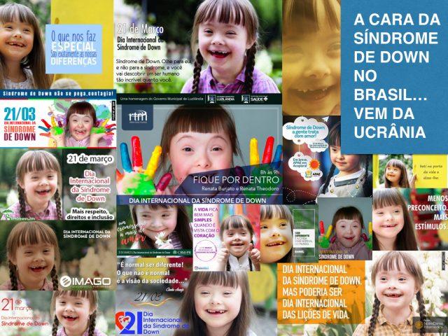 A cara da síndrome de Down no Brasil… vem da Ucrânia